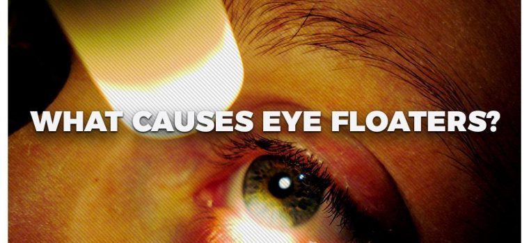 What Causes Eye Floaters?