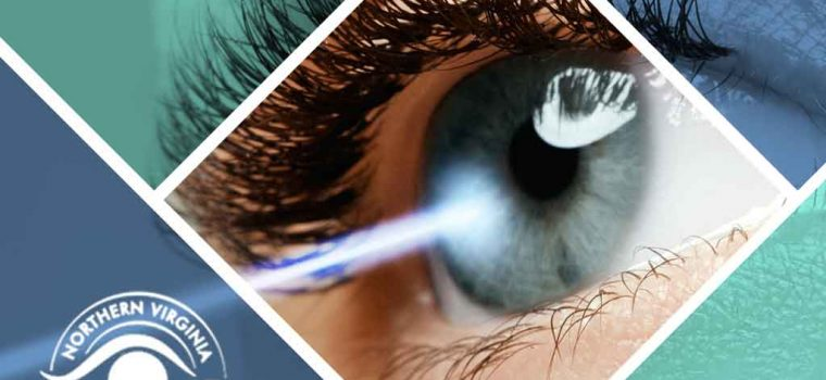 A Closer Look at the LASIK Procedure