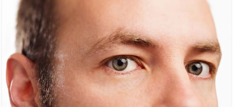 What You Need to Know About Eye Freckles